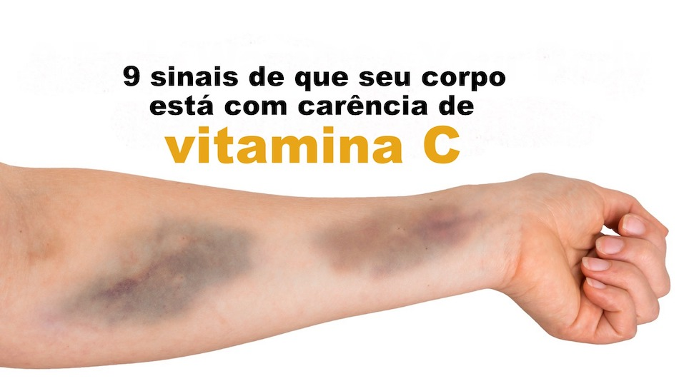 vitamina_c_ed