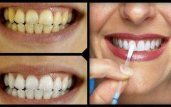Como clarear dentes de forma simples e barata com vinagre de maçã