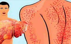 13 sinais que aparecem no seu corpo e você não entende – mas eles indicam que seu fígado está muito gorduroso