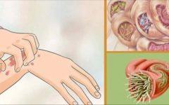 20 sinais de que vermes e parasitas estão residindo no seu corpo – estes remédios caseiros vão ajudar você a destruí-los