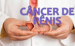 Câncer de pênis, Como identificar e tratar