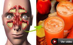 Você Sofre De Rinite Alérgica Ou Sinusite? Então Experimente Este Remédio Caseiro!