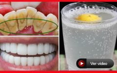 Os Dentistas NÃO Querem Que Você Saiba Esse Truque ELIMINA O TÁRTARO em 3 Min SEM GASTAR NADA