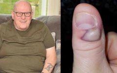 Este homem quase morreu por morder as unhas – os riscos desse hábito muito comum