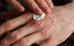 Copaíba – remédio natural poderoso para herpes, eczema, psoríase, sífilis e até derrame.