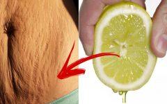 3 receitas para eliminar as estrias com limão
