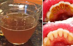 Conheça o chá natural que remove a sujeira dos dentes melhor que os produtos comerciais