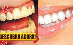 Aprenda a eliminar o tártaro sem ajuda de um dentista