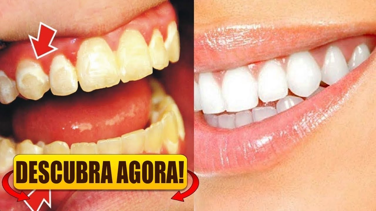 dentes22