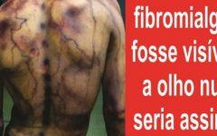 Fibromialgia: o que é e como tratar?