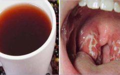 Dor de garganta: causas e como aliviar