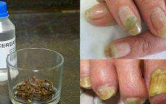Remédios caseiros para micose de unha: 9 receitas fáceis
