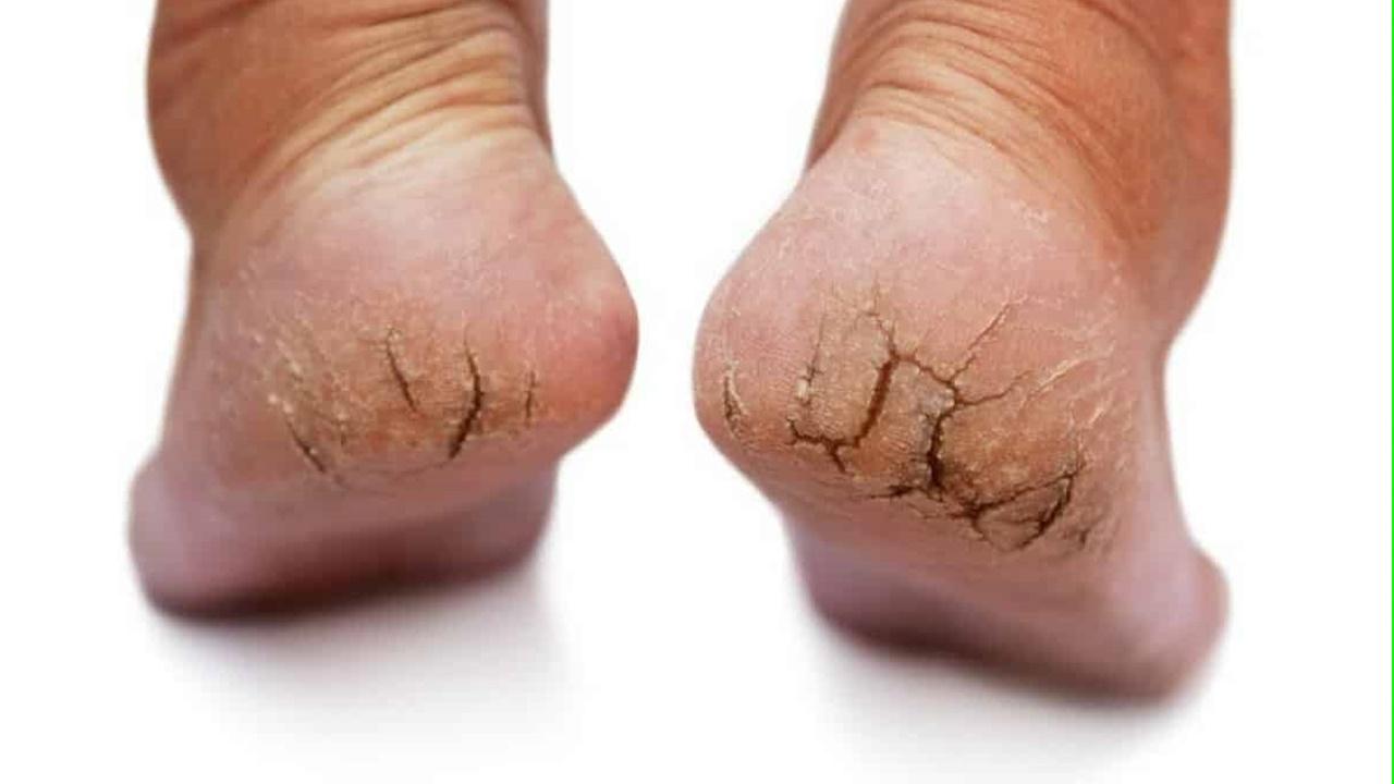 pés rachados1280