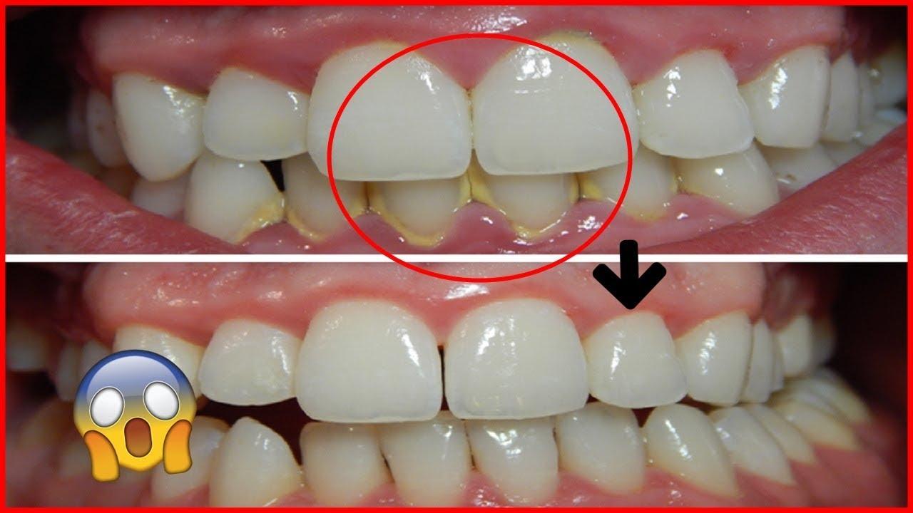 remova-a-placa-dental-com-este-p