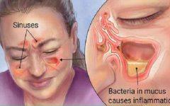 Com este truque acabe de vez com sinusite e rinite, de forma bem fácil!
