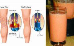 Bebida caseira para combater as varizes e melhorar a circulação