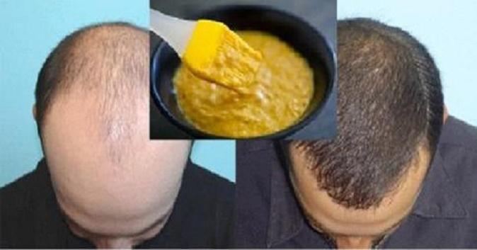 cabelo_-_crescer_-_queda_-_banana_ovo_e_cerveja_escura (1)