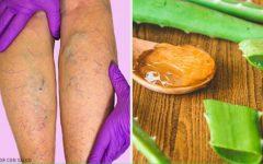 Cure as varizes com esse remédio de aloe vera