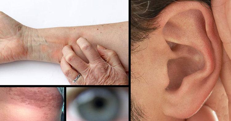 Sintomas-pré-diabetes