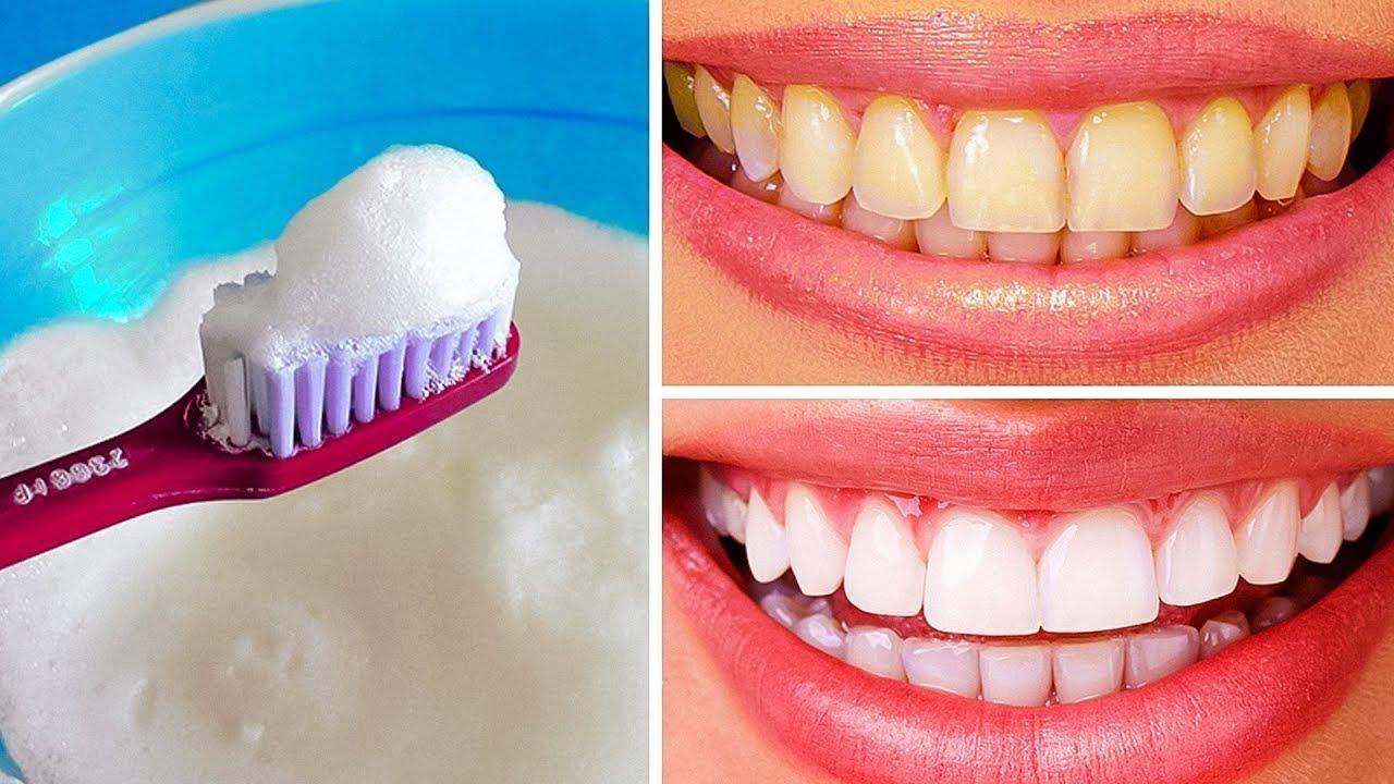 Clareie os dentes em casa