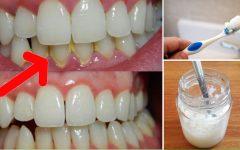 3 tratamentos eficazes para remover o tártaro dos dentes