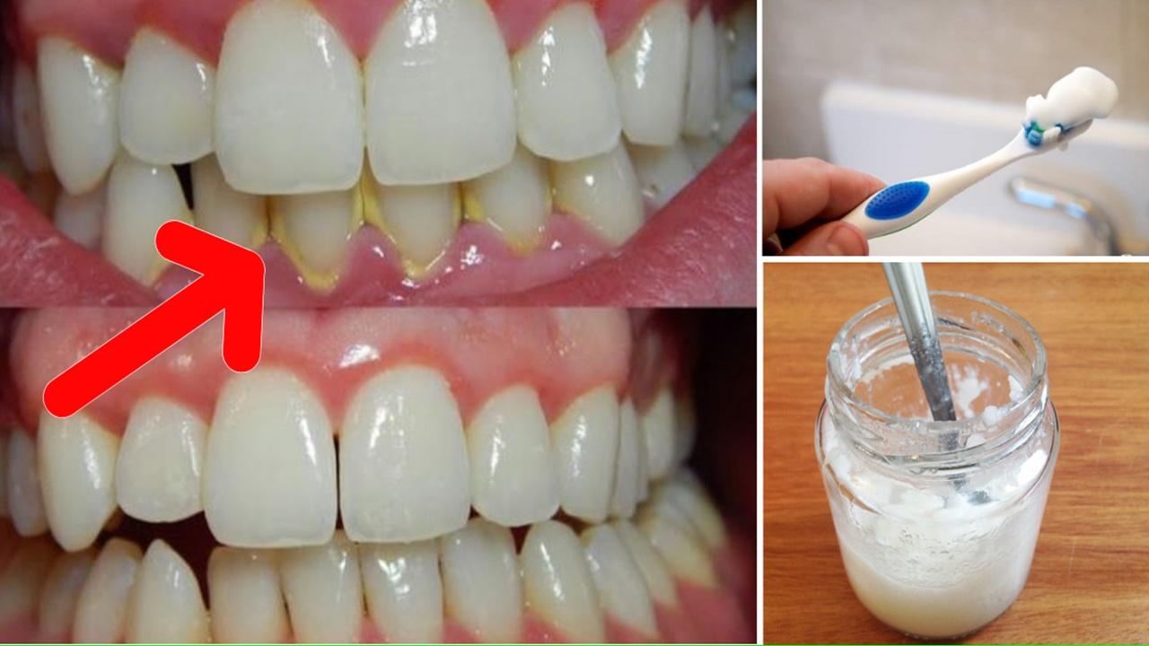 Como-eliminar-o-tartaro-usando-bicarbonato-de-sodio1