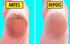 Pés macios e muito mais bonitos – isso é possível com este tratamento com bicarbonato de sódio!