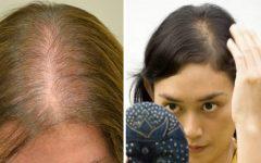 Como engrossar o cabelo: 14 dicas