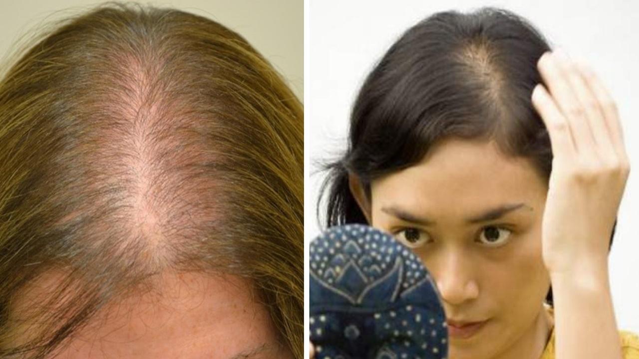 como-engrossar-cabelo1