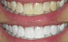 Como clarear os dentes em casa! Veja essas 10 dicas para deixar seu sorriso ainda mais bonito