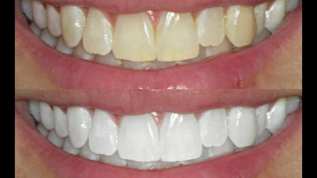 dentes111