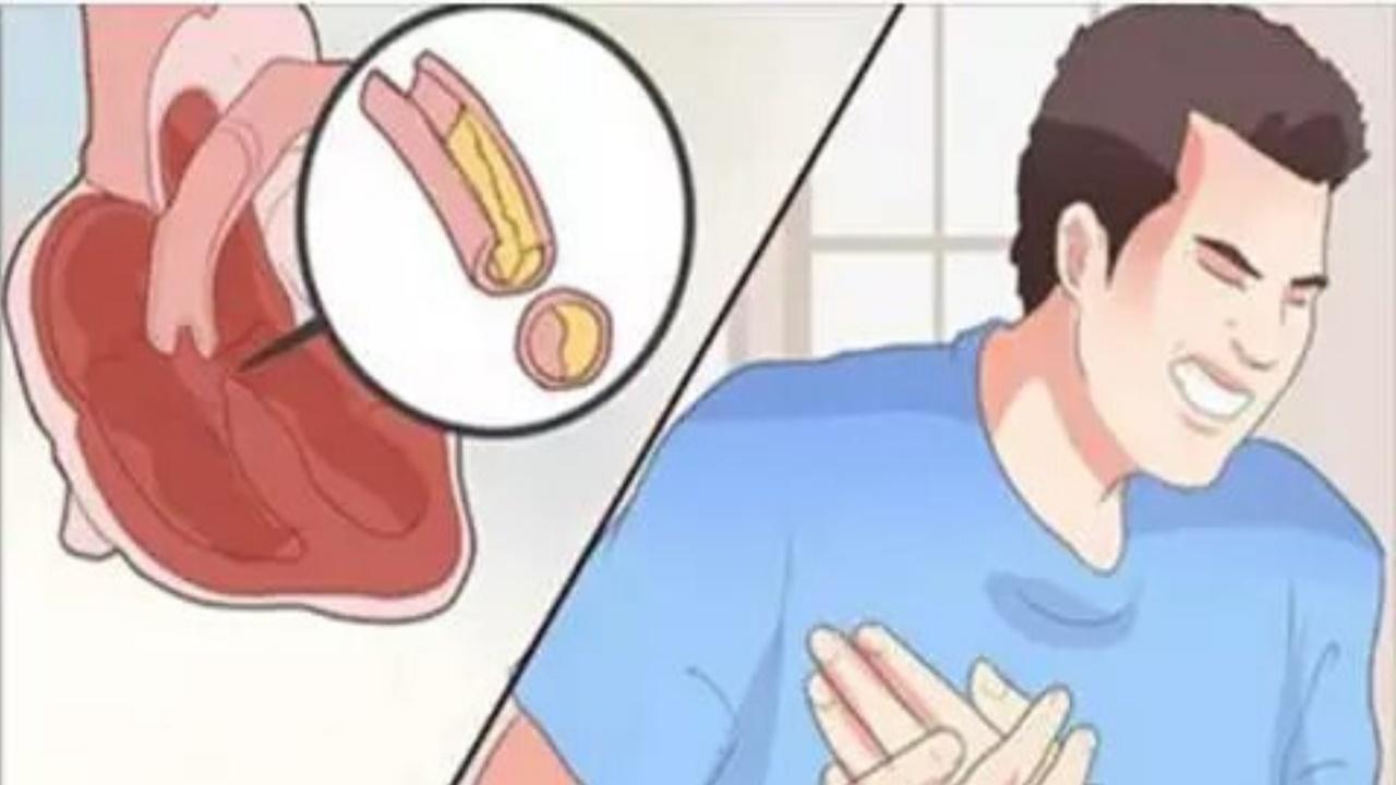 desentupir-arterias-2