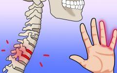 7 razões para não ignorar o formigamento nas mãos