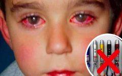 Laser, um brinquedo que pode provocar cegueira!