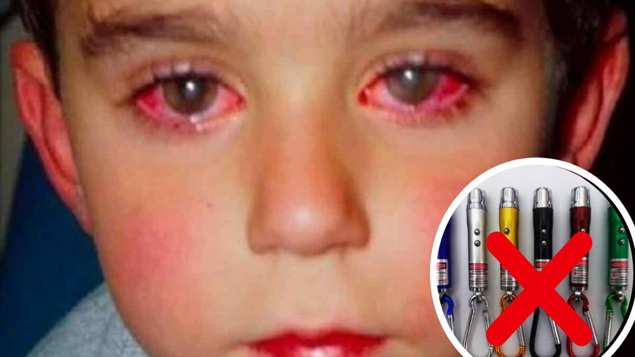 laser-brinquedo-provoca-cegueira1