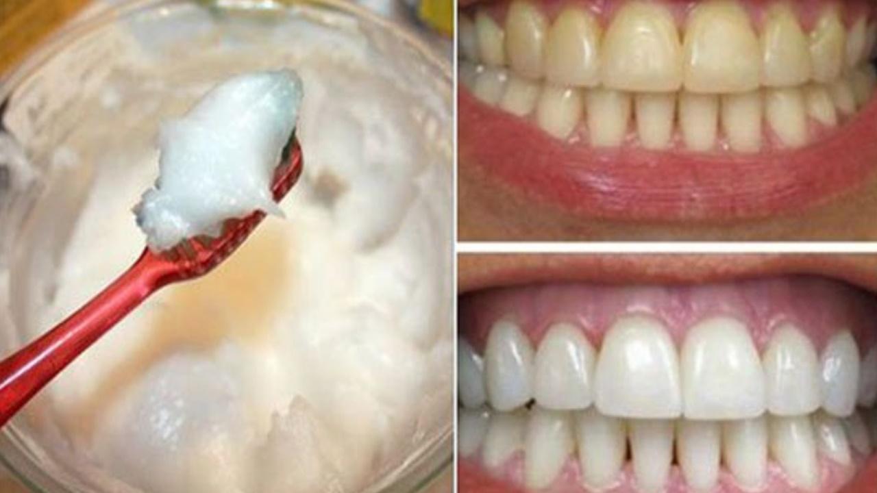 oleo-de-coco-clareia-os-dentes1