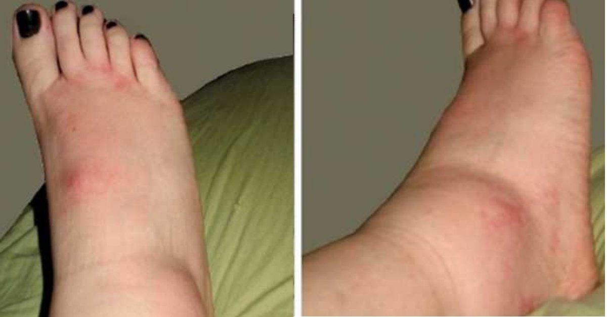 pé inchado (1)