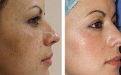 Bicarbonato para a pele: saiba se é seguro usar