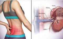 10 sintomas de doenças nos rins que você precisa identificar o mais rápido possível para evitar problemas mais sérios!