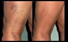 Mulheres satisfeitas: este remédio natural melhora circulação e elimina varizes em pouco tempo!