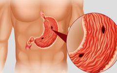Câncer de estômago: conheça os sintomas e tratamentos