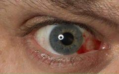7 Causas dos derrames oculares