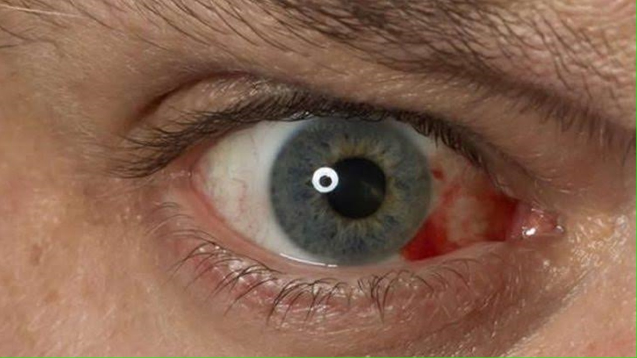 olhos341