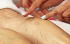 Técnicas simples de massagem para se livrar de veias varicosas