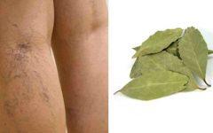 Tratamento natural para varizes com folha de louro, cravo-da-índia e gengibre