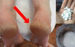 Remédios caseiros para rachadura nos pés