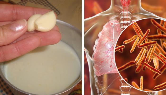 zbenefícios-leite-e-alho