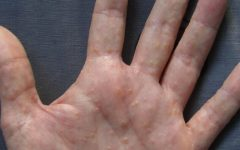 Bolhas nas mãos e nos pés podem ser sintomas de disidrose