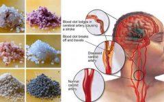 Proteja-se de um derrame para sempre com estes 2 remédios caseiros