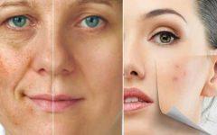 Creme depilatório para o rosto: como fazer em casa